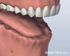 Missing All Upper or Lower Teeth -
